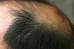 Attention: To Everyone Who is Concerned About Hair Loss