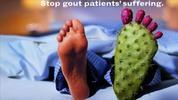 Los Síntomas de Gota-Causas Tratamientos