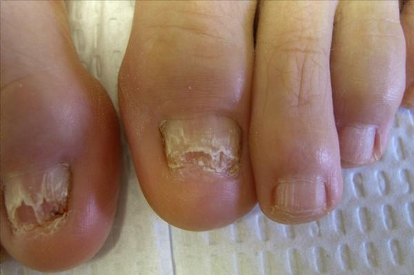 Product picture Infecciones: Los Síntomas, Causas, Cura Hongos en Las Uñas